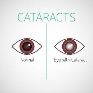 Cataract Surgery Denton TX